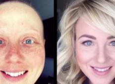16 pacientov, ki so premagali raka, PRED in PO fotografije