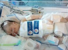 Pol leta stara dojenčica iz okolice Brežic nujno potrebuje pomoč. Ji lahko pomagate?