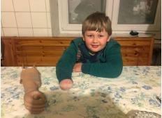 4-letni Jakob iz okolice Idrije je v nesreči ostal brez dela svoje rokice. Pomagajmo mu do nove proteze!