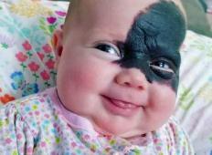 Tale deklica se je rodila z ogromnim znamenjem sredi obraza. Starši so se odločili, da je ne operirajo, razlog pa izjemen ...