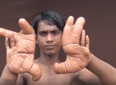 Da, prav vidite. To je fant, ki ima gromozansko velike roke!