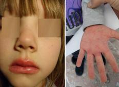 Slovenska mamica opozarja starše pred redko boleznijo, ki preži na vaše otroke: »To je diagnoza, ki ti v trenutku obrne svet na glavo«