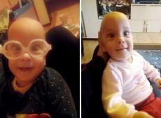 Dojenčica Neža iz Štajerske nas potrebuje. Pomagajmo ji do lepšega življenja!
