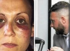Mož je pretepal njunega 3-letnega sina. Mama je s svojim telesom zaščitila sina pred najhujšim ...