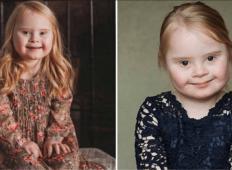 Spoznajte 7-letno deklico z Downovim sindromom, ki ima uspešno kariero modela