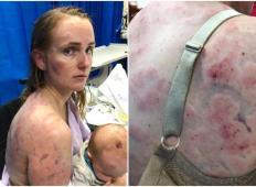 Mama s telesom zaščitila svojega otroka pred točo. Poglejte, kakšne posledice je utrpelo njeno telo ...