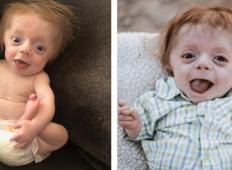 Zdravniki so mu napovedali smrtno diagnozo in staršem dejali, da je splav najboljša rešitev. Toda tale fantek je ostal borec!