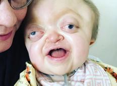 Rodila se je z izbuljenimi očmi in deformirano lobanjo. V prvih 18. mesecih življenja je tale mala borka imela 20 operacij!