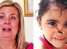 Posvojila je siroto, kateri so živali pojedle nos. Poglejte, kako je videte danes!